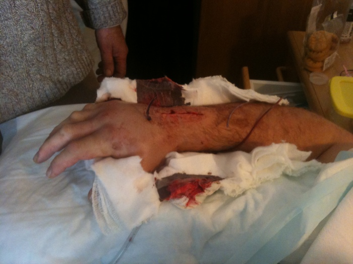 My smashed up right wrist and hand